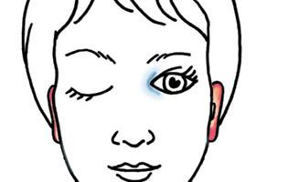 Gesicht mit antlitz-analytischen Zeichen