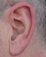 Eisenohr-gerötetes Ohr